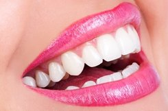 Huntington Dentist | Huntington dental Whitening and Bleaching |  WV